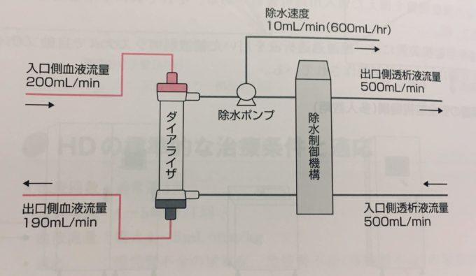 【透析】日機装社製の除水ポンプの原理・仕組みにについて