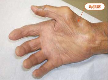 手根管症候群の症状の母指球の萎縮