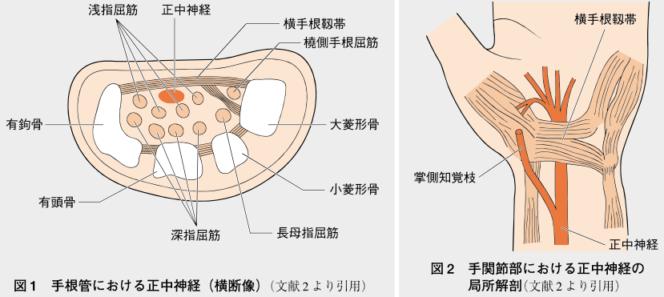 手根管症候群の解剖