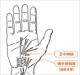 手根管症候群とは