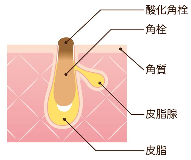 毛穴のブラックヘッドの構造
